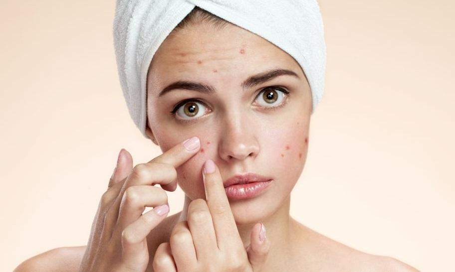 De ce acneea apare doar la anumite persoane?