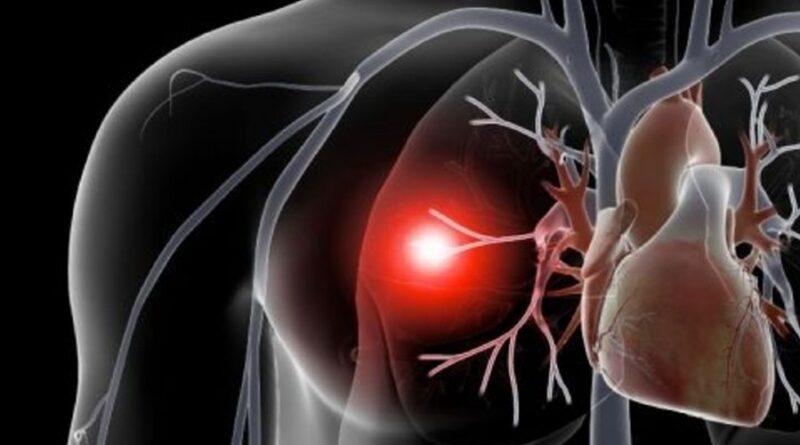 Embolismul pulmonar