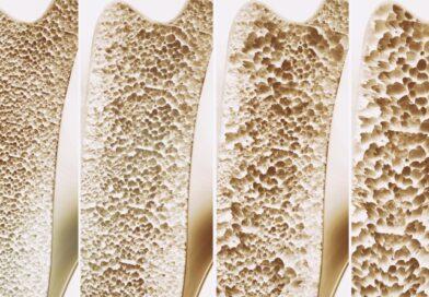 COMUNICAT DE PRESĂ AMGEN –  Ziua Internațională a Osteoporozei