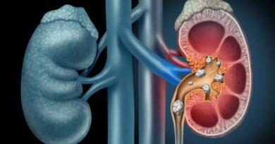 Pietre la rinichi